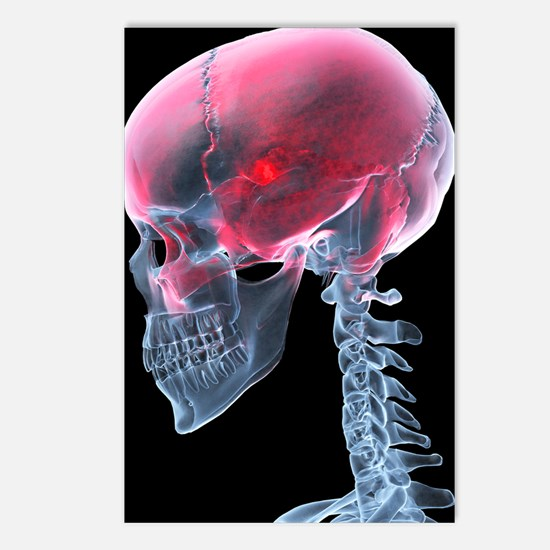 Headache, X-ray artwork Postcards (Package of 8)