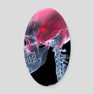 Headache, X-ray artwork Oval Car Magnet
