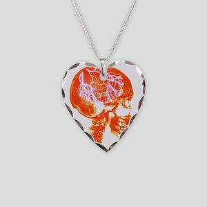 Headache Necklace Heart Charm
