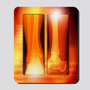 Healing ankle fracture, X-ray Mousepad