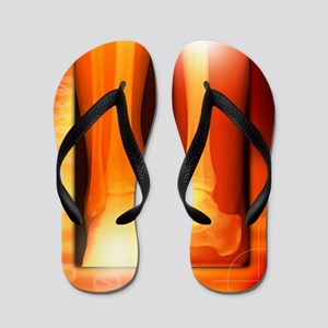 Healing ankle fracture, X-ray Flip Flops