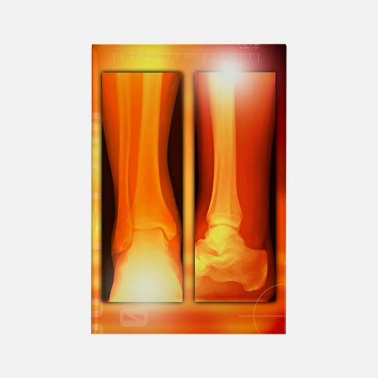 Healing ankle fracture, X-ray Rectangle Magnet