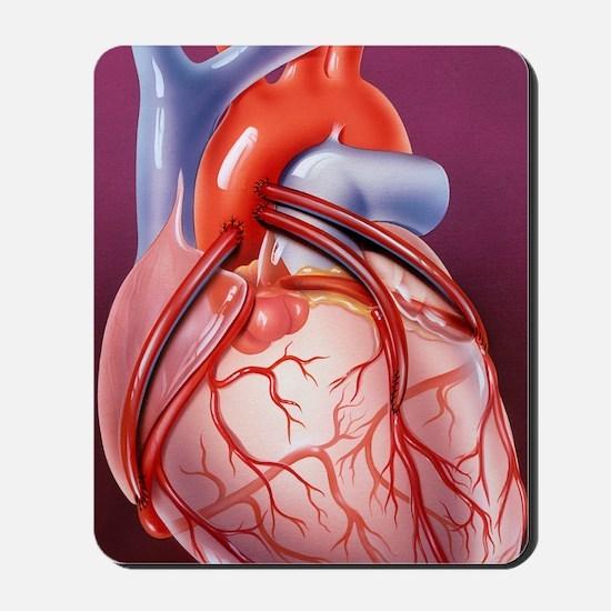 Heart bypass grafts Mousepad