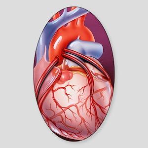 Heart bypass grafts Sticker (Oval)