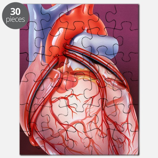 Heart bypass grafts Puzzle