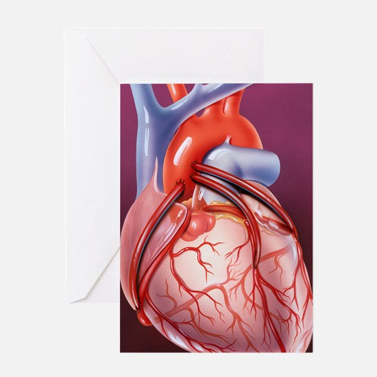 Heart bypass grafts Greeting Card