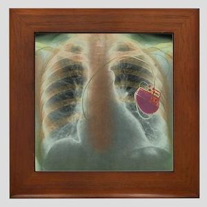 Heart pacemaker, X-ray Framed Tile