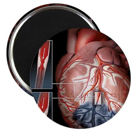 Heart ischaemia Magnet