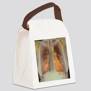 Heart valve replacement, X-ray Canvas Lunch Bag