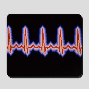 Heartbeat trace Mousepad