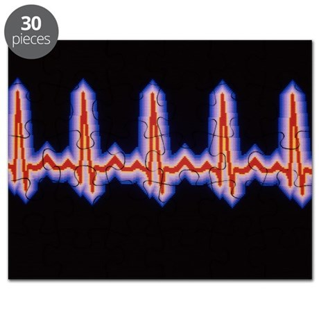 Heartbeat trace Puzzle