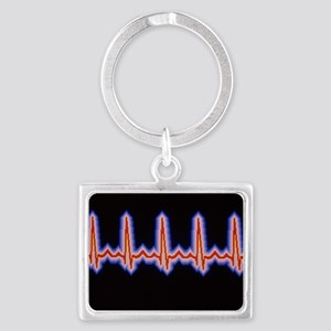 Heartbeat trace Landscape Keychain