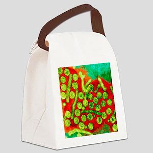 Hepatitis B viruses, TEM Canvas Lunch Bag