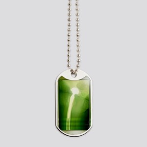 Hip replacement, X-ray Dog Tags