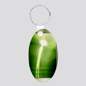 Hip replacement, X-ray Aluminum Oval Keychain