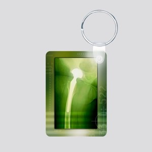 Hip replacement, X-ray Aluminum Photo Keychain