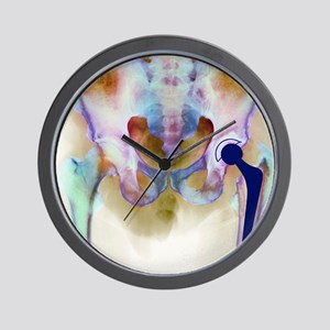 Hip joint replacement, X-ray Wall Clock