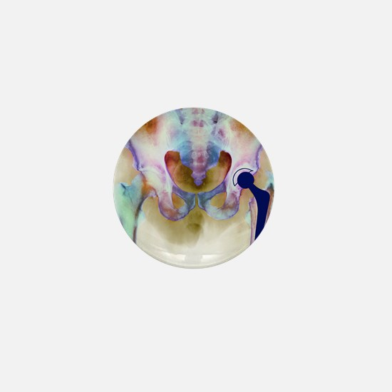 Hip joint replacement, X-ray Mini Button