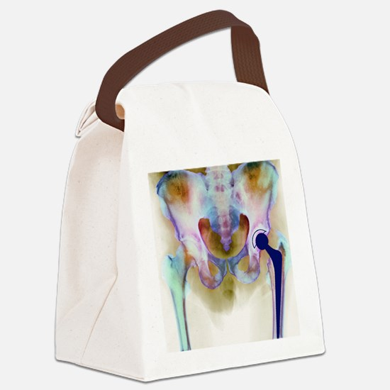 Hip joint replacement, X-ray Canvas Lunch Bag