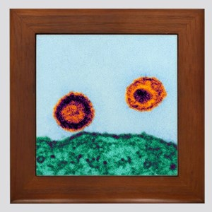 HIV particles, TEM Framed Tile