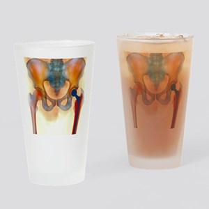 Hip joint replacement, X-ray Drinking Glass
