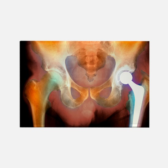Hip joint replacement, X-ray Rectangle Magnet