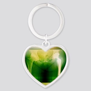 Hip replacement, X-ray Heart Keychain