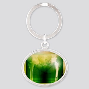 Hip replacement, X-ray Oval Keychain