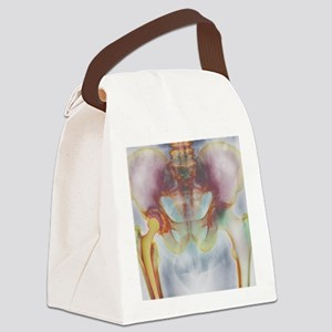 Hip replacement, X-ray Canvas Lunch Bag