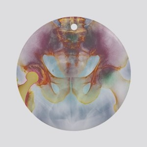 Hip replacement, X-ray Round Ornament