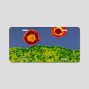 HIV particles, TEM Aluminum License Plate
