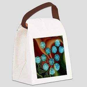 Human papilloma viruses, TEM Canvas Lunch Bag