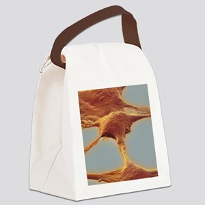 Human embryonic kidney cells, SEM Canvas Lunch Bag