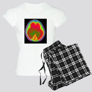 Hydrocephalus CT scan Women's Light Pajamas