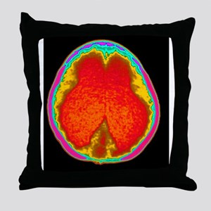 Hydrocephalus CT scan Throw Pillow
