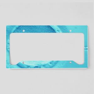 ICSI method of in vitro ferti License Plate Holder