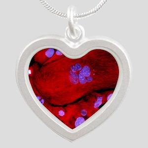 Immunofluorescent LM of blad Silver Heart Necklace