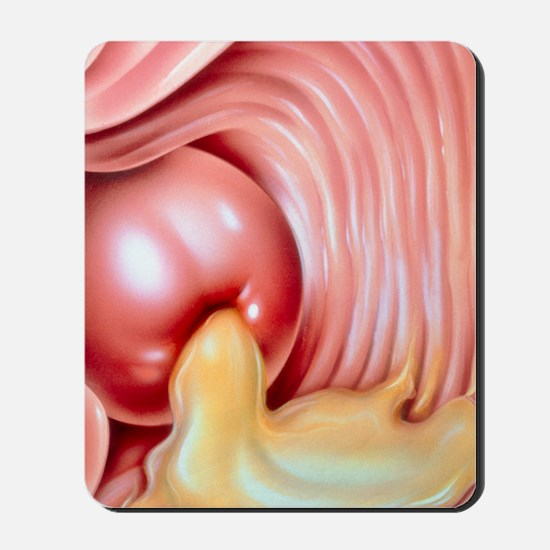 Illustration of gonorrhoea of the cervix Mousepad