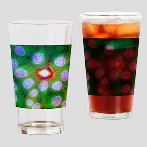 Immunofluorescent LM of squamous ca Drinking Glass