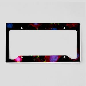 Immunofluorescent LM of squam License Plate Holder