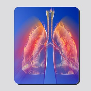 Inflamed lungs Mousepad