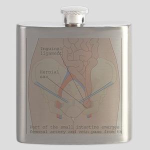 Inguinal hernia, artwork Flask