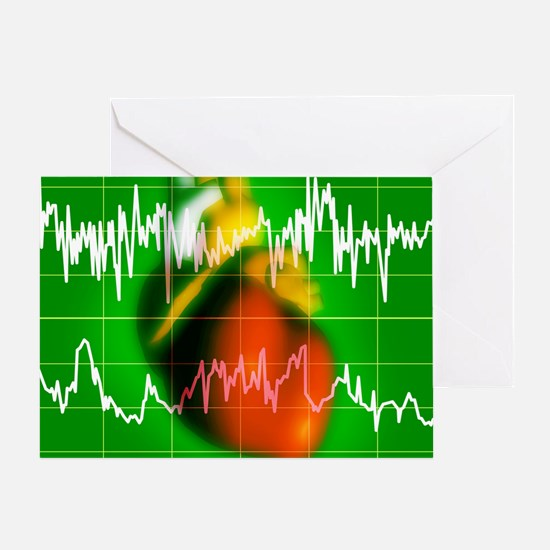 Irregular heartbeat Greeting Card