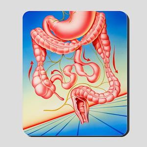 Irritable bowel syndrome Mousepad