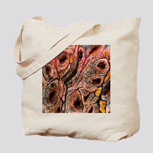 Intestine showing coeliac disease Tote Bag