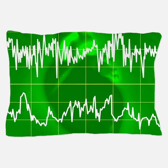Irregular heartbeat Pillow Case