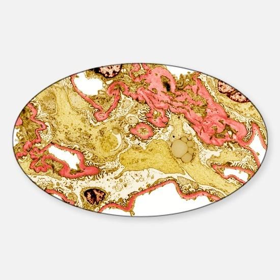 Kidney disease, TEM Sticker (Oval)