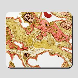 Kidney disease, TEM Mousepad