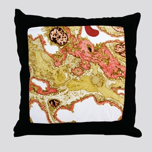 Kidney disease, TEM Throw Pillow