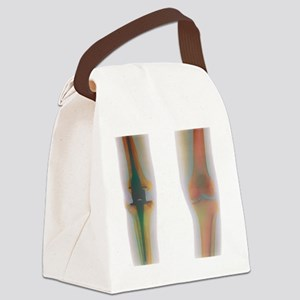 Knee replacement, X-ray Canvas Lunch Bag